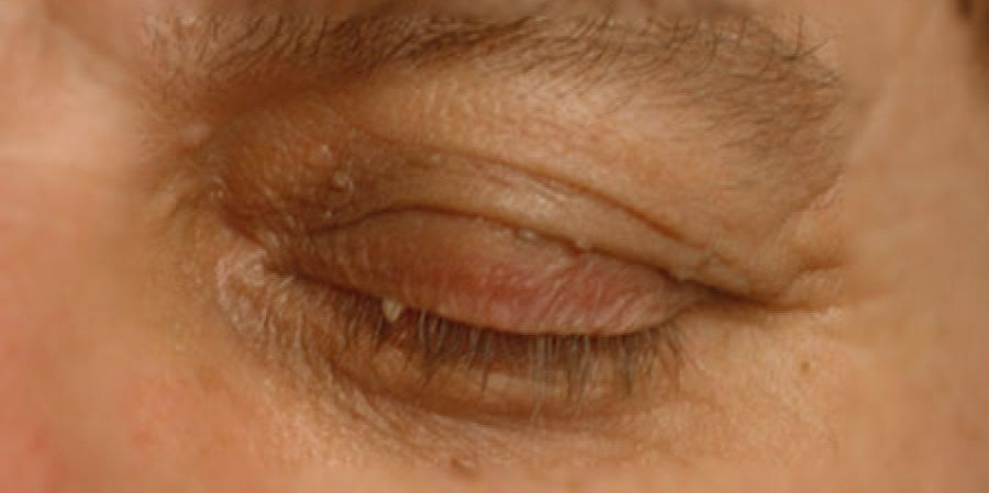 Eyelid Skin Tags Causes and Symptoms